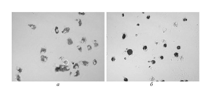 Стволовите клетки и тяхната употреба. Стволови клетки подробно